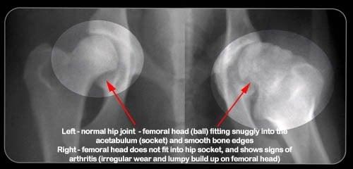 ejemplo de radiografia de un individuo con displasia de cadera